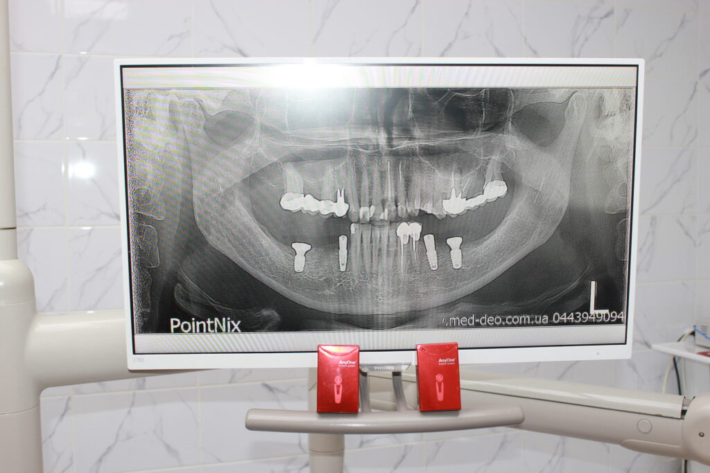 Зубні імпланти MegaGen AnyOne: повний огляд img 1796